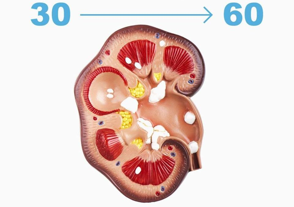 At What Age Kidney Stones Occur?