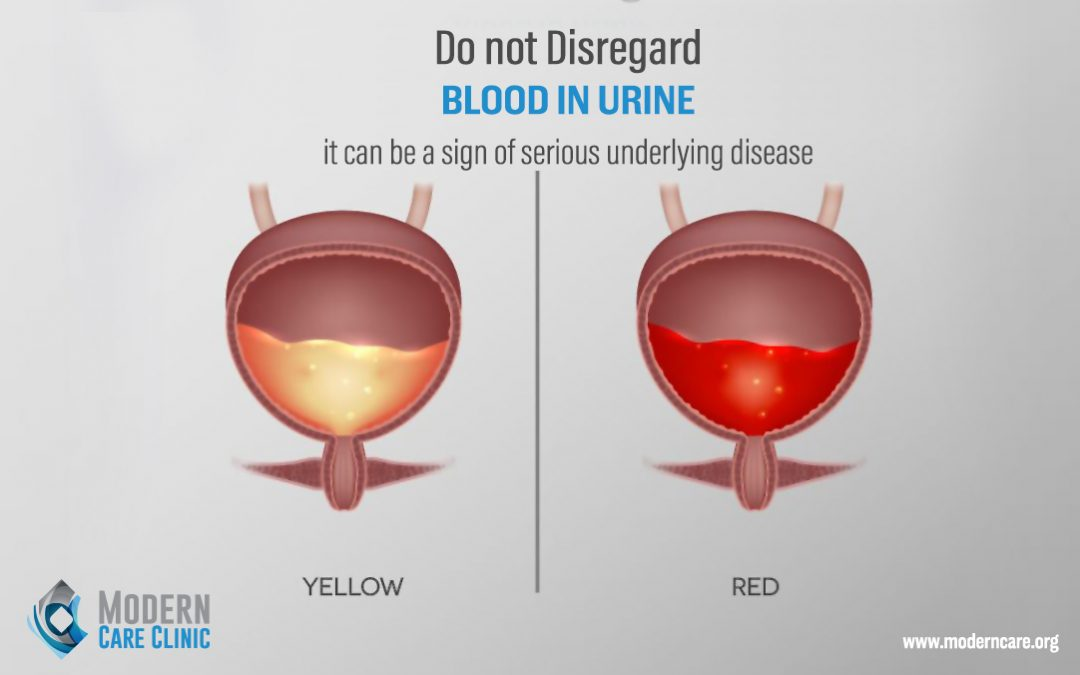 Blood in Urine