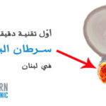Prostate-cancer-treatment