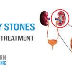 Impressive Info about Kidney Stones 1