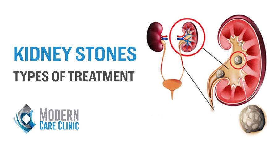 Impressive Info about Kidney Stones
