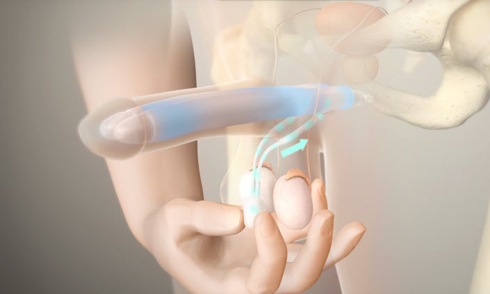 Penile Prosthesis the  BEST surgical treatment for ED in Lebanon