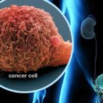Maintenance Therapy For Bladder Cancer 3