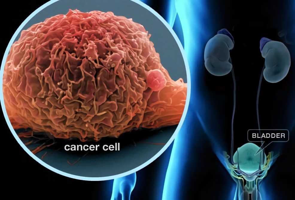 Maintenance Therapy For Bladder Cancer